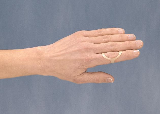 Mallet Finger Splints Lookup Beforebuying